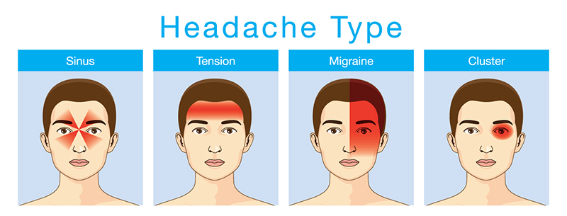Illustration shows the types of headaches and the areas affected by each.