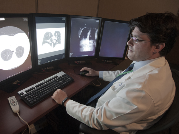 Low-dose CT screen better pinpoints lung cancer