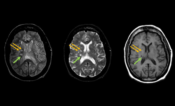 Typically disregarded brain lesions may warn of heightened stroke risk