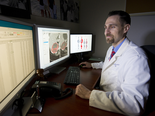 UMMC researcher: CT texture may improve melanoma survival predictions