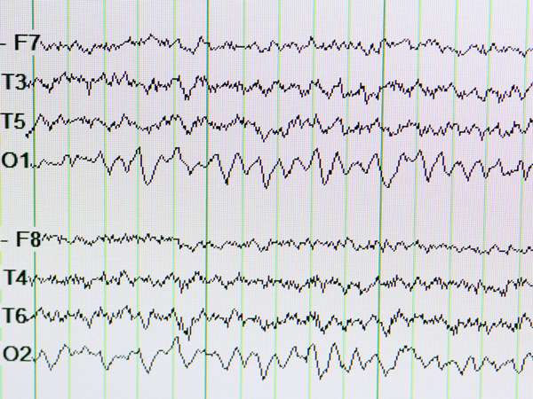 Electrical activity in the brain is measured with EEGs.