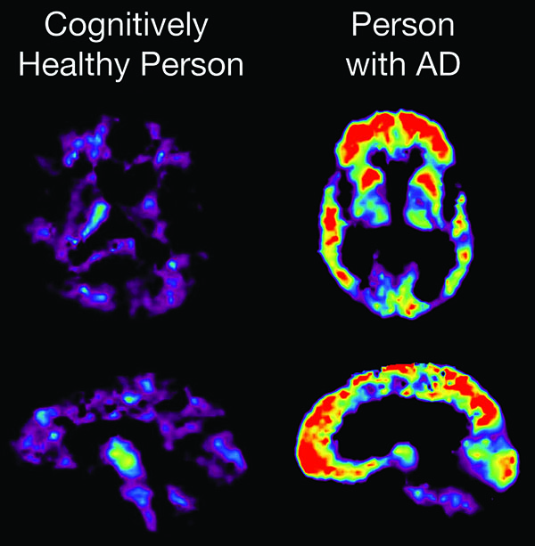 A PET scan reveals brain changes associated with Alzheimer's disease. At right, areas that glow red represent higher concentrations of amyloid plaque. (Image courtesy of the National Institute on Aging)