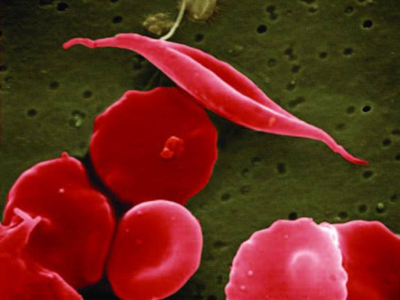 Sickle cell trait and sickle cell disease cause red blood cells to change shape, shown by the top cell. People with sickle cell trait experience llimited sickling and few to no symptoms. (Photo credit: NIH)