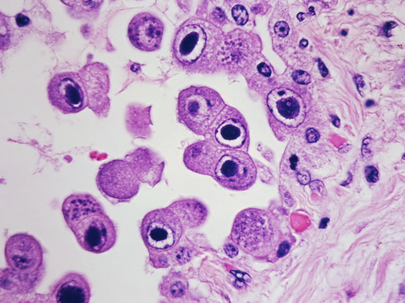 HCMV infection (dark spots) in lung cells. (photo credit: NIH/Yale Rosen/Creative Commons)