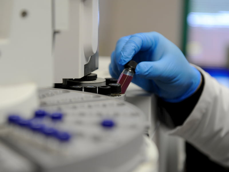 UMMC has started a new clinical trial to test whether antibodies in blood plasma from people who have recovered from COVID-19 can help treat patients still dealing with severe forms of the disease. Photo copyright Getty Images.