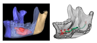 Example of a virtual planning case with the proposed reconstruction of the mandible with a fibula free flap, nerve allograft and immediate dental implants (source: 3d Systems/Stryker)